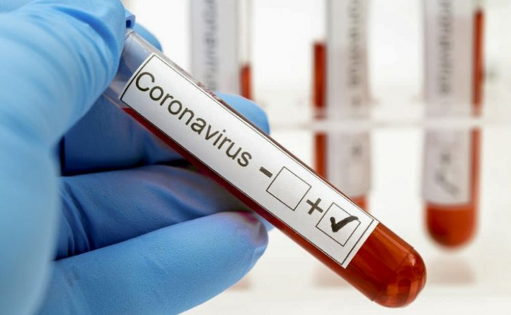 İranda koronavirusdan ölənlərin sayı 10 mini ötüb